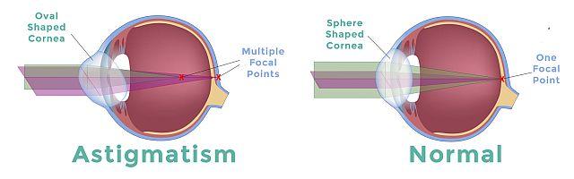 Що таке астигматизм