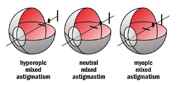 Змішаний астигматизм очей