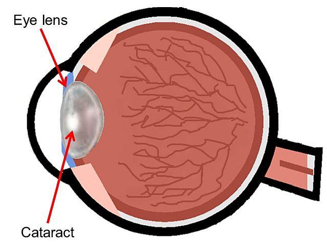 кришталик ока