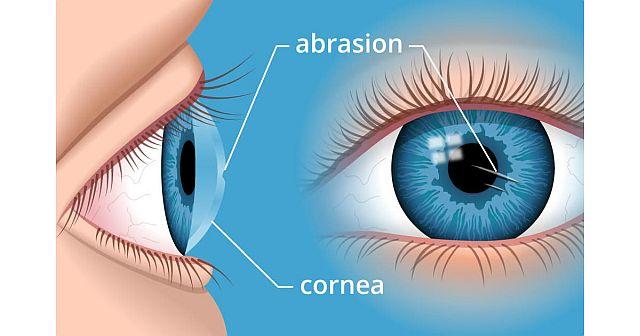 рогівка ока