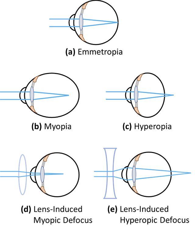 Види порушення рефракції зору