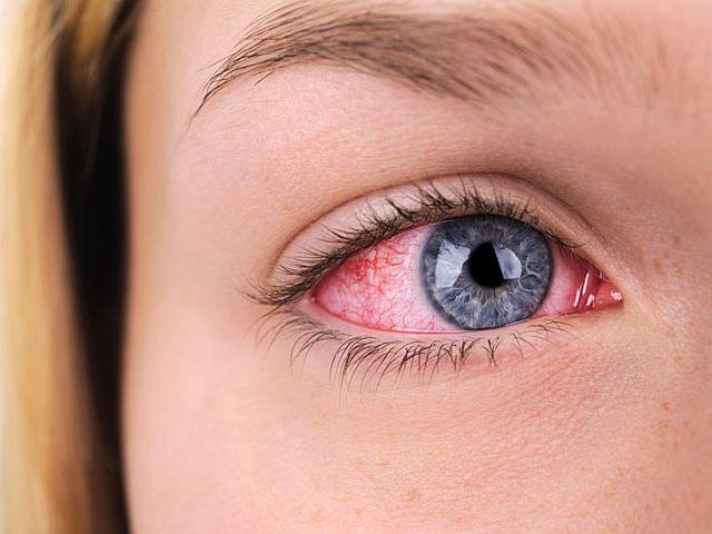 запалення очей